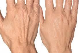 Hand Rejuvenation Filler - Before and After