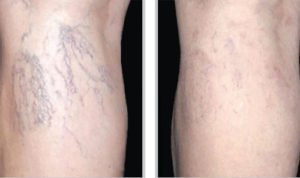 Microsclerotherapy - Before and After