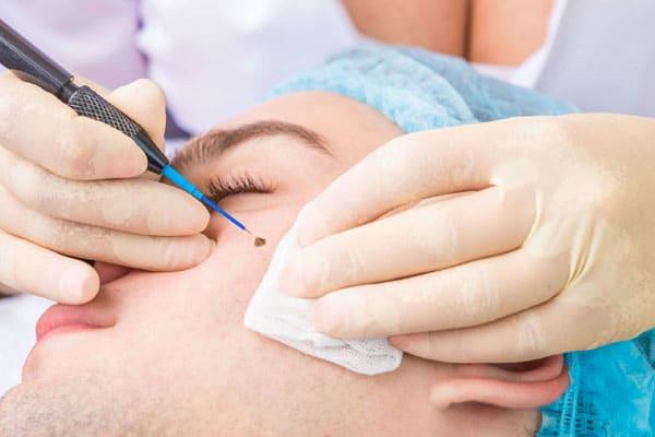 Mole Removal   Minor Surgery   London