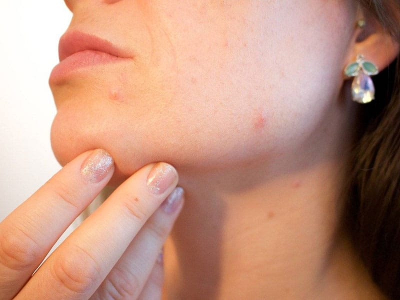 Acne / Acne Scarring | London