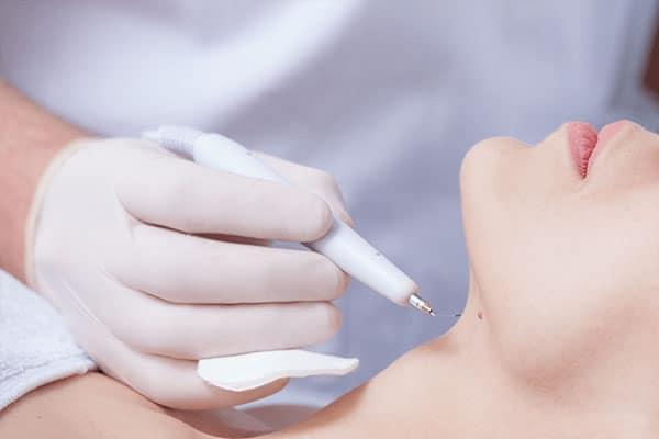 Skin Tag Removal   Minor Surgery   London
